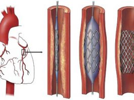 An illustration showing use of stents in the heart. Photo: Britannica