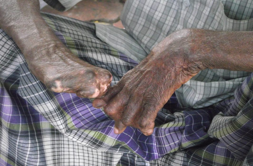 Discrimination against leprosy patients: Most states failed to state steps taken for rehabilitation, SC told