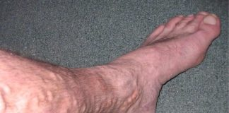 Leg affected by varicose veins (representative image)