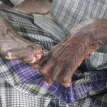 SC expresses displeasure over the non-implementation of programmes for leprosy patients