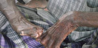 Bill to end discrimination against leprosy patients in next session of parliament, Centre tells SC