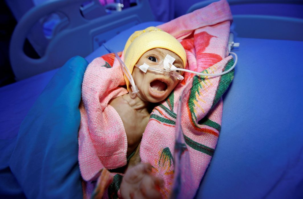 STRUGGLING: Sixty-day-old Nadia Ahmad Sabri, who suffers from severe malnutrition, lies in bed at a malnutrition treatment center in the Red Sea port city of Hodeida, Yemen, Reuters/UNI