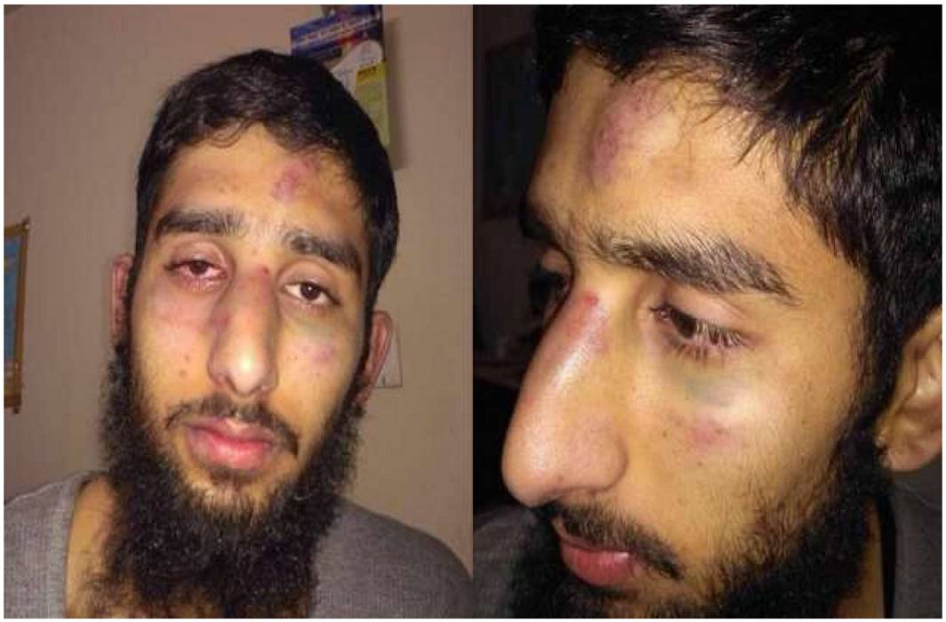 Kashmiri students brutally thrashed by mob in Haryana post namaz