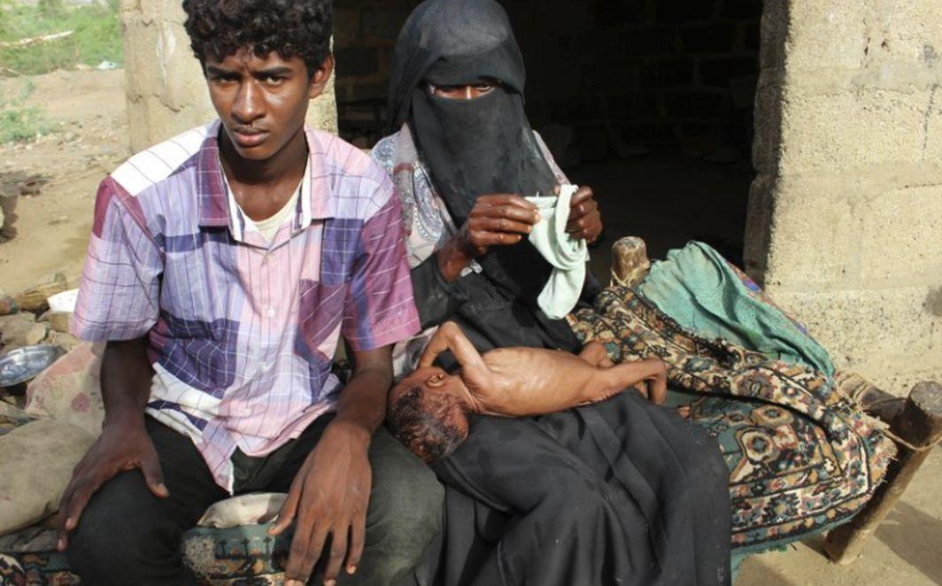 Yemen; Children Face Death, Malnutrition, forced to eat wax leaves