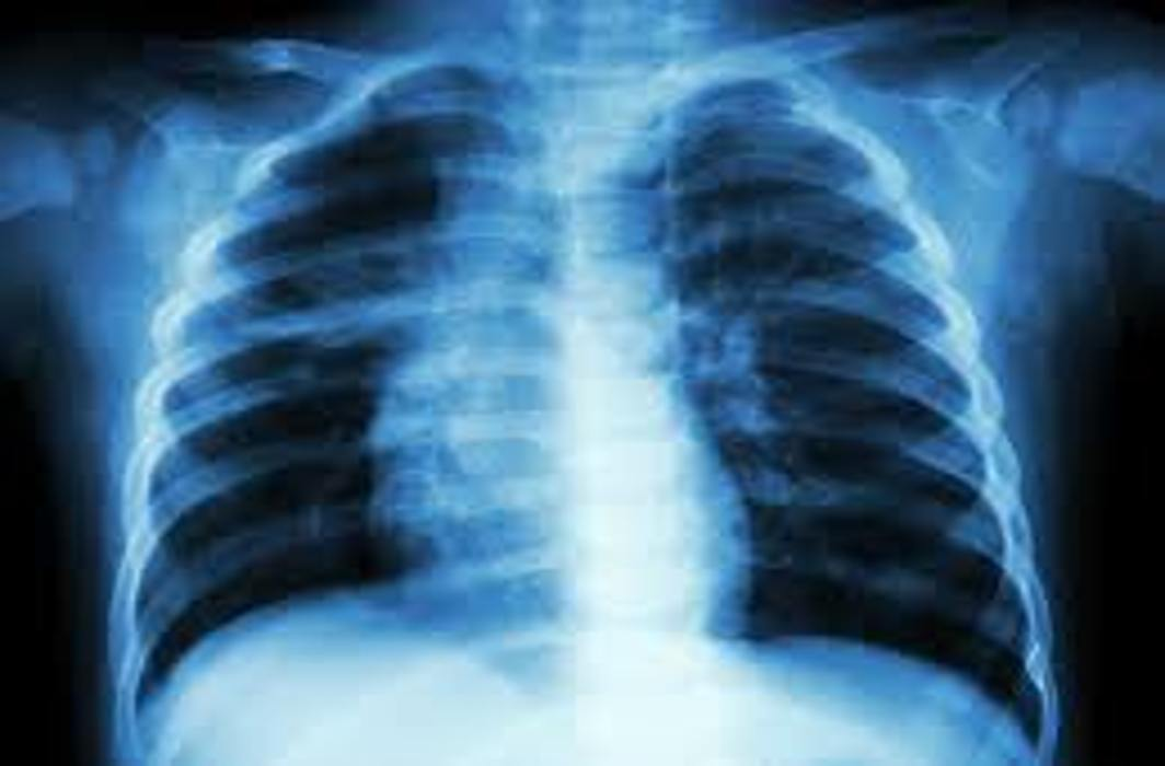 Faster diagnostic tests developed for tuberculosis (TB)