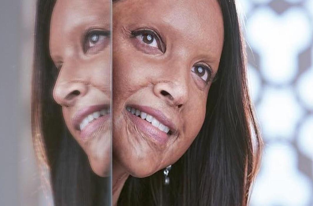 Deepika Padukone's first look as acid attack survivor from her upcoming movie 'Chhapaak'