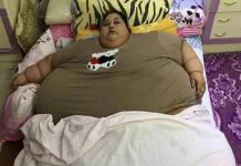 Most weighing woman's surgery successful , loose 100 kg weight