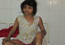 Mogli Girl found in the forests of UP