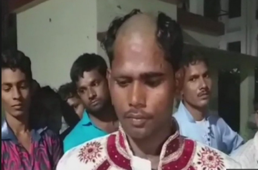 The groom has demand Apache bike in dowry