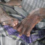 SC issues a slew of directives to Centre, states on the rehabilitation of leprosy affected persons