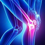 IIT-Roorkee researchers explore new treatment for knee pain