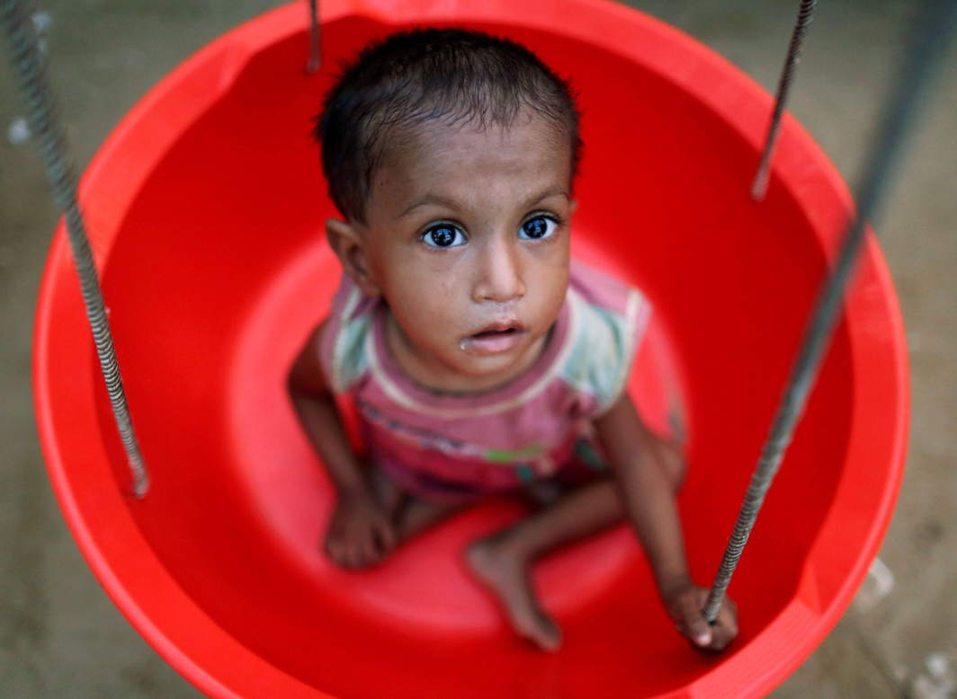 INHERITANCE OF LOSS: A Rohingya refugee girl is weighed at the emergency nutrition treatment centre in Balukhali refugee camp near Cox's Bazar, Bangladesh, Reuters/UNI