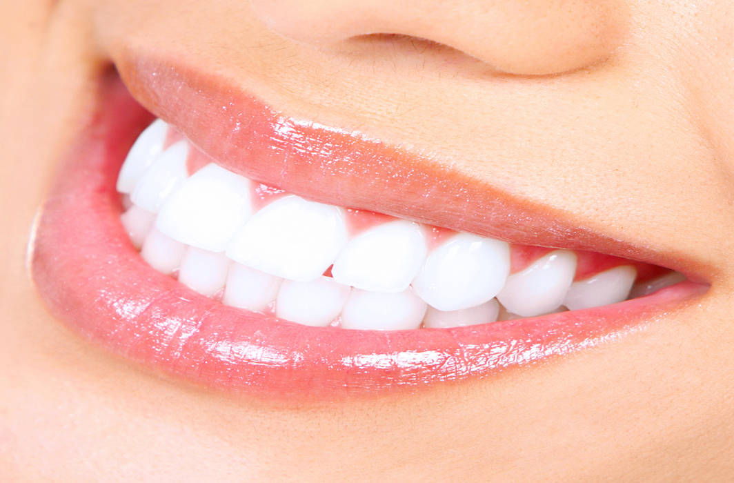Whitening products may cause tooth decay, claims researchers