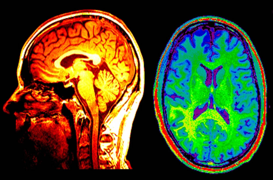 Brain scans may help detect suicidal tendency: Study