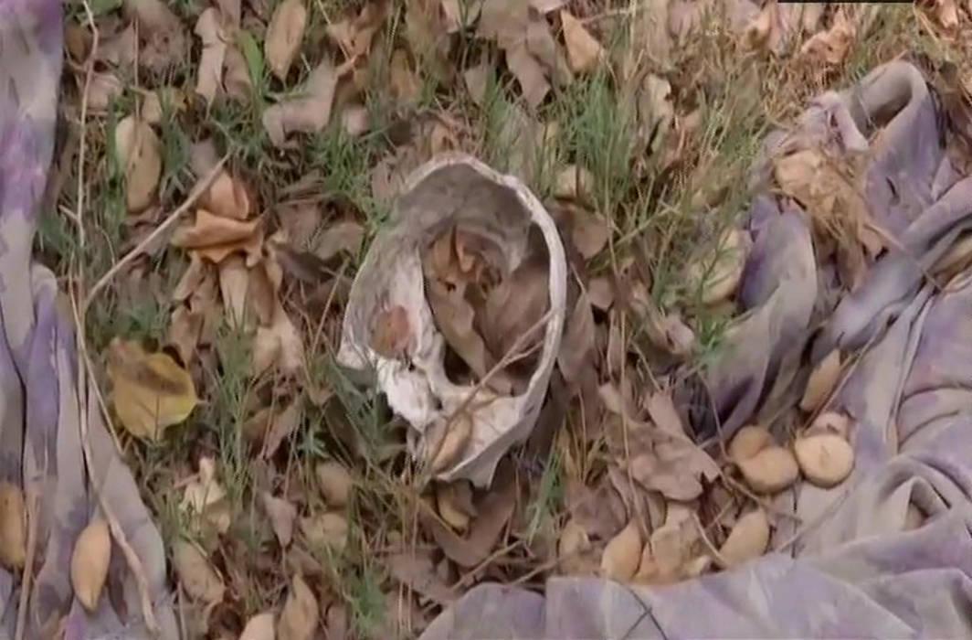 Skeletal remains of 108 children found outside Muzaffarpur Hospital
